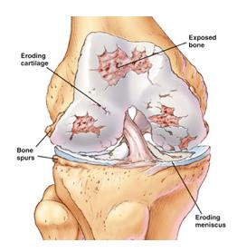 Stem Cells for Knee Arthritis